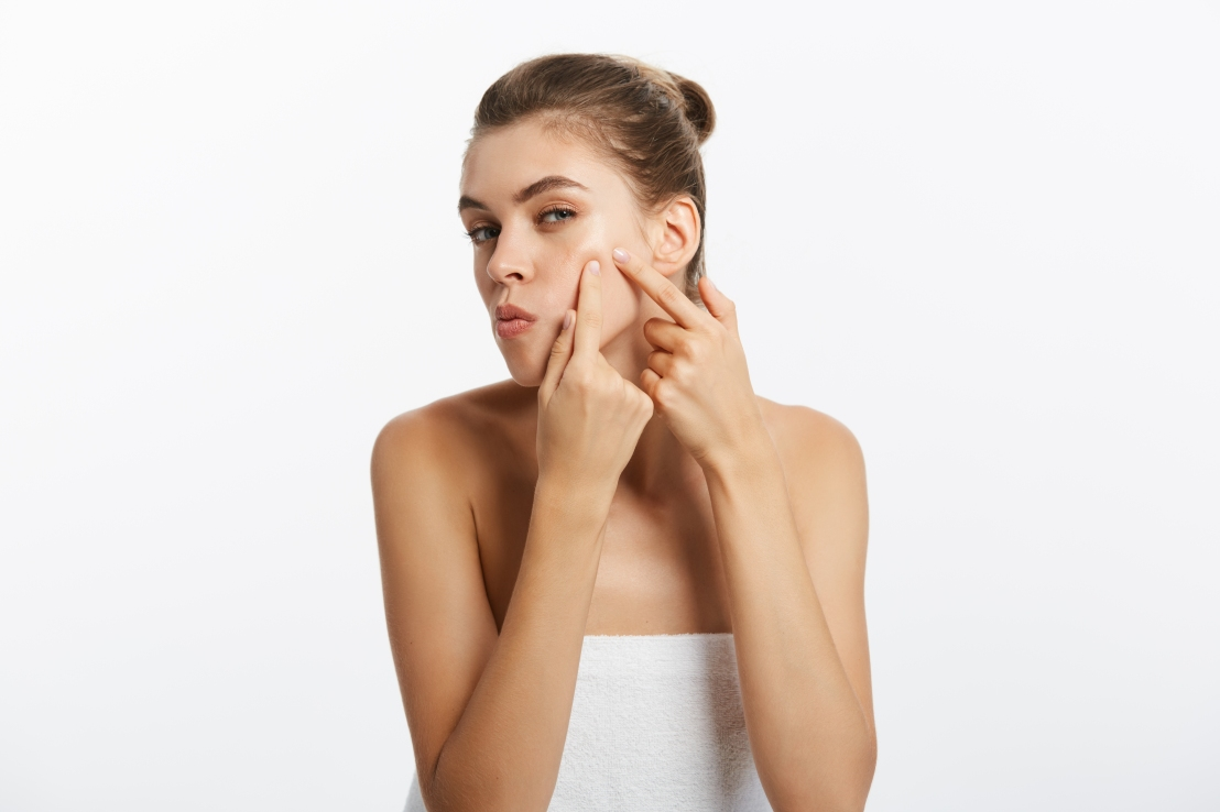 Acne – the gift that keeps on giving